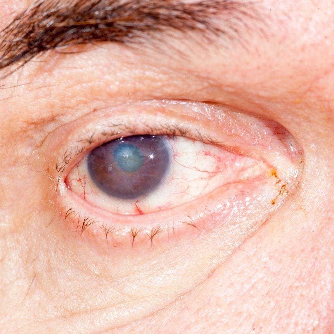 Úlcera de la córnea